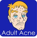 I Have Adult Onset Acne. How Do I Cure It?