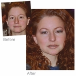 Before/After Makeover By Cosmetic Cosmos