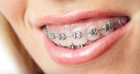 "Just For Braces ""Newbies"""