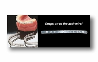Lip Protector for Dental Braces