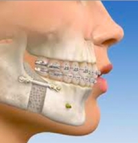 Recovery From Jaw Surgery
