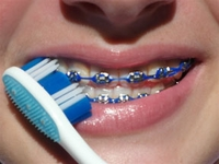 Toothbrushes for Braces and Orthodontics