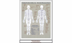FREE Electrode Placement Chart  - Click On Picture For The Free Download Provide by Medical Products Online, Inc.