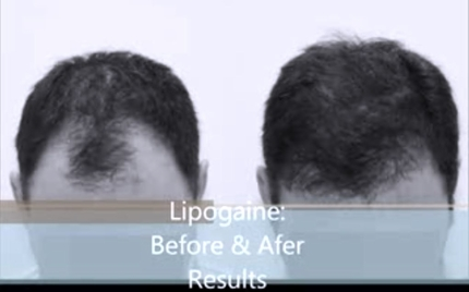 Lipogaine For Men with Minoxidil - 2 Oz Bottle