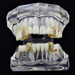 Gold CZ 4 Single Tooth Set