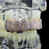 Grillz Micro Pave Rose Gold