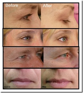 Deep Penetrating Light (Wrinkle / Acne / Pain) Therapy System