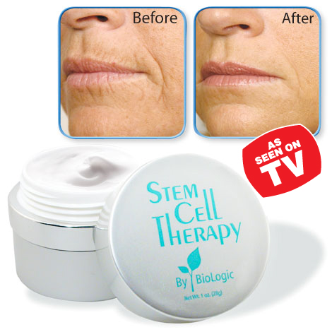 Stem Cell Therapy Anti-Wrinkle Cream