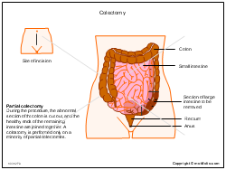 Colectomy