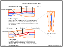 Femoral artery bypass graft