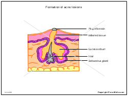 Formation of acne lesions