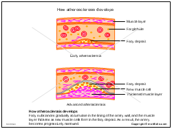 How atherosclerosis develops