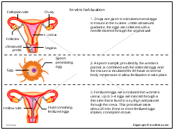 In-vitro fertilization