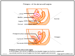 Prolapse of the uterus and vagina