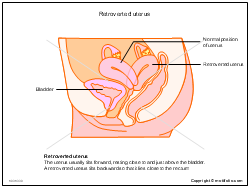 Retroverted uterus PPT PowerPoint drawing diagrams, templates ...