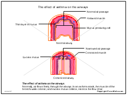 The effect of asthma on the airways