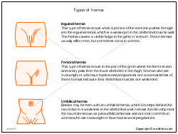 Types of hernia