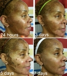 Chemical Peels and African American Skin