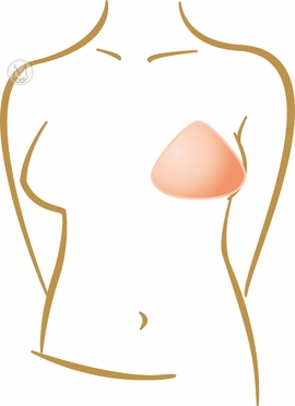 Amoena Balance 1O Breast Shaper 259