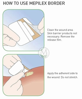 Mepilex Border Post-Op Silicone Foam Dressings Home Page