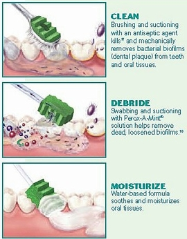 Toothette Suction Toothbrush with Perox-A-Mint Solution (Sage #6571)