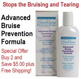 Advanced Bruise Prevention Formula by SkinRenu