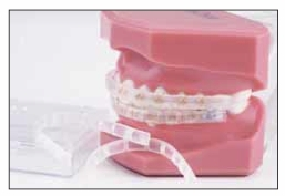 Lip Protector for Braces