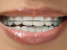 Types of Retainers: Pros and Cons