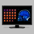 "NEC 30"" Color 4-Megapixel Widescreen Medical Diagnostic Monitor - MD301C4"
