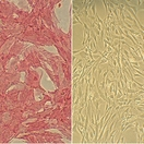 Human Smooth Muscle Cells