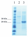 Rapid Response Protein Expression Service