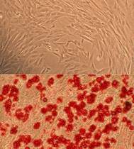 Human Marrow Stromal Cell