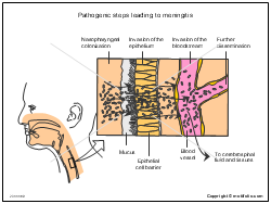 Pathogenic steps leading to meningitis