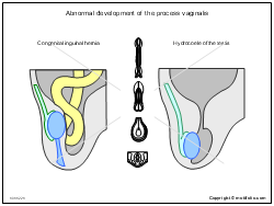Abnormal development of the process vaginalis