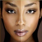 Hyperpigmentation!  Is There A Secret To Eliminating It?