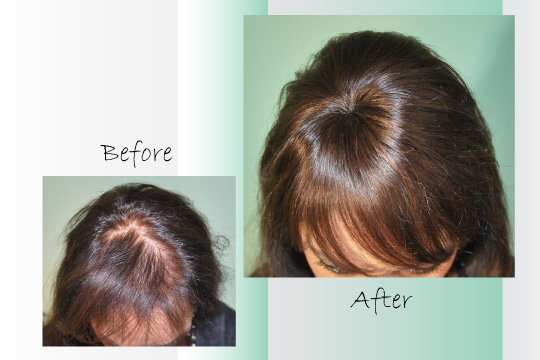 Woman Thinning Hair On Human Hair Pieces For Women With Thinning Hair ...